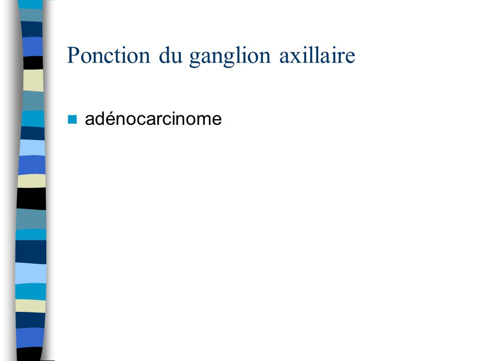 Ponction du ganglion axillaire