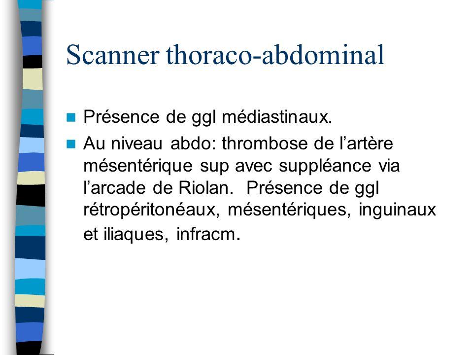 Scanner thoraco-abdominal