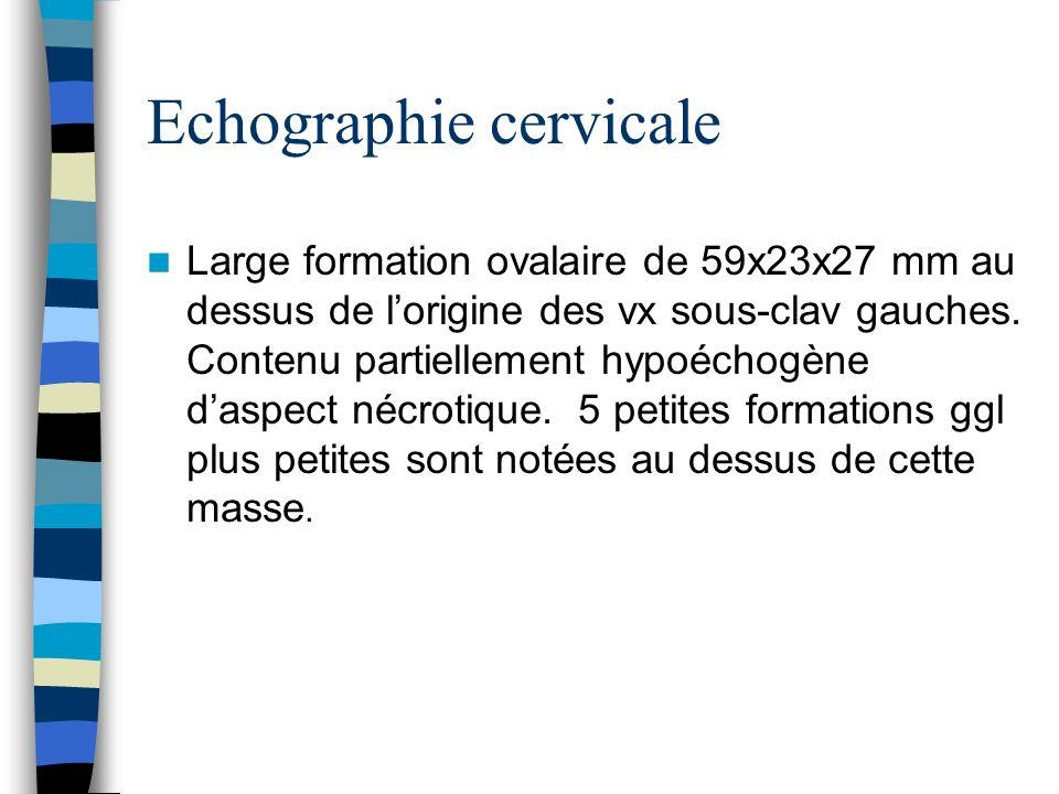 Echographie cervicale