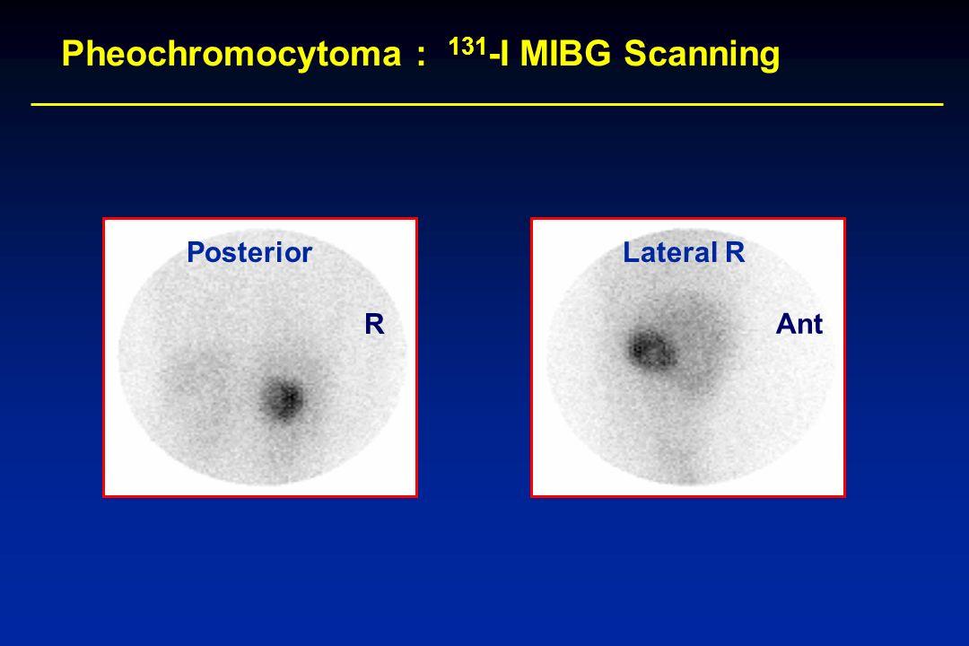 Pheochromocytoma : 131-I MIBG Scanning