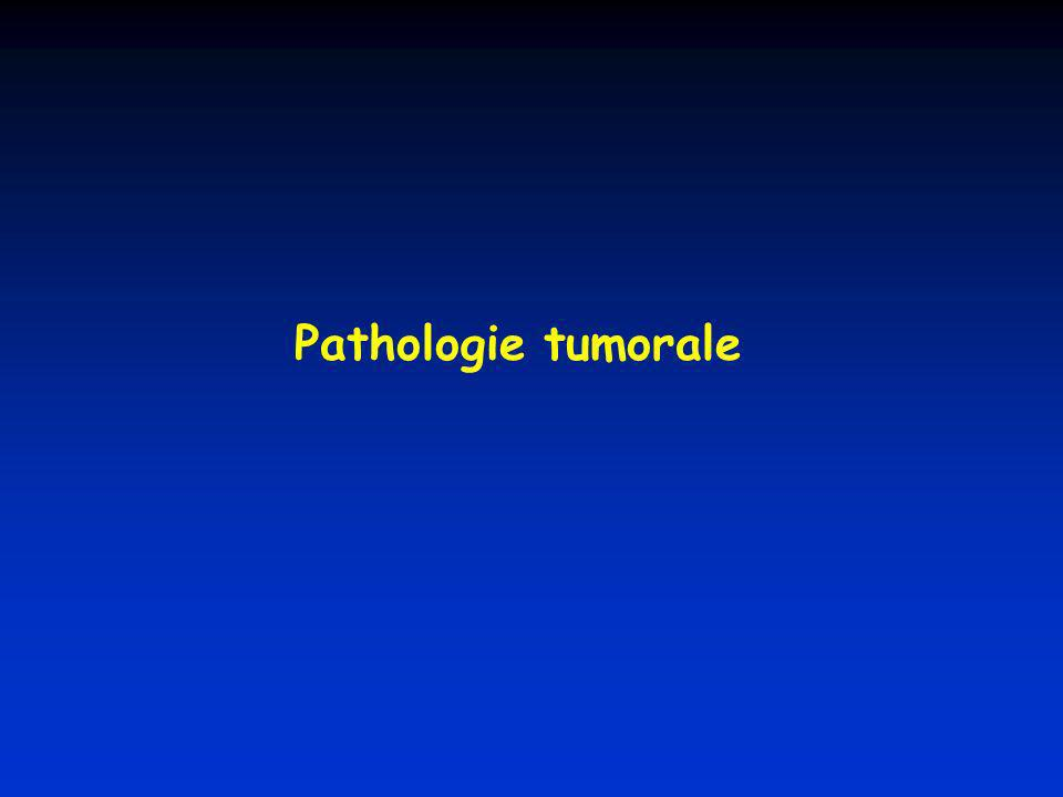 Pathologie tumorale