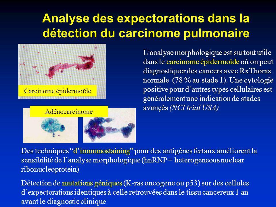 Analyse des expectorations dans la détection du carcinome pulmonaire