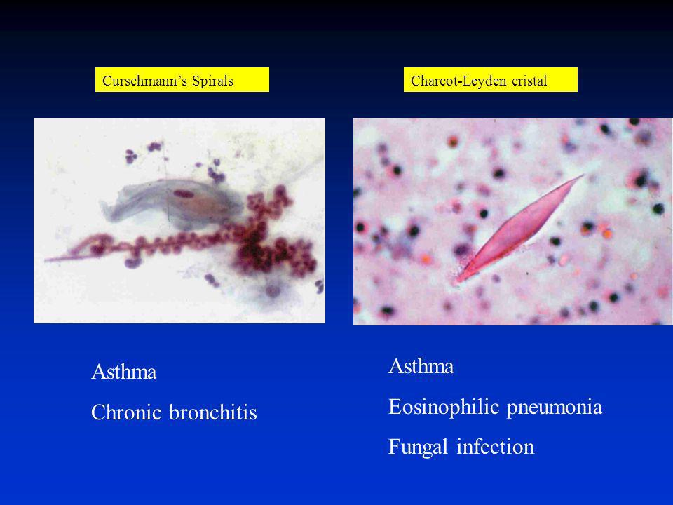 Eosinophilic pneumonia Fungal infection Asthma Chronic bronchitis