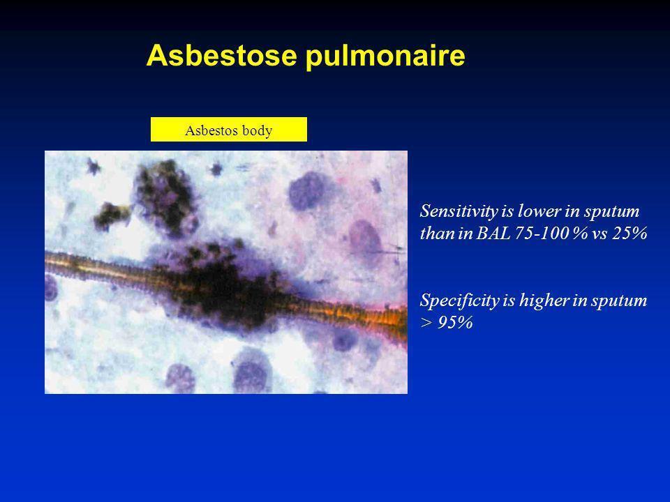 Asbestose pulmonaire Asbestos body.