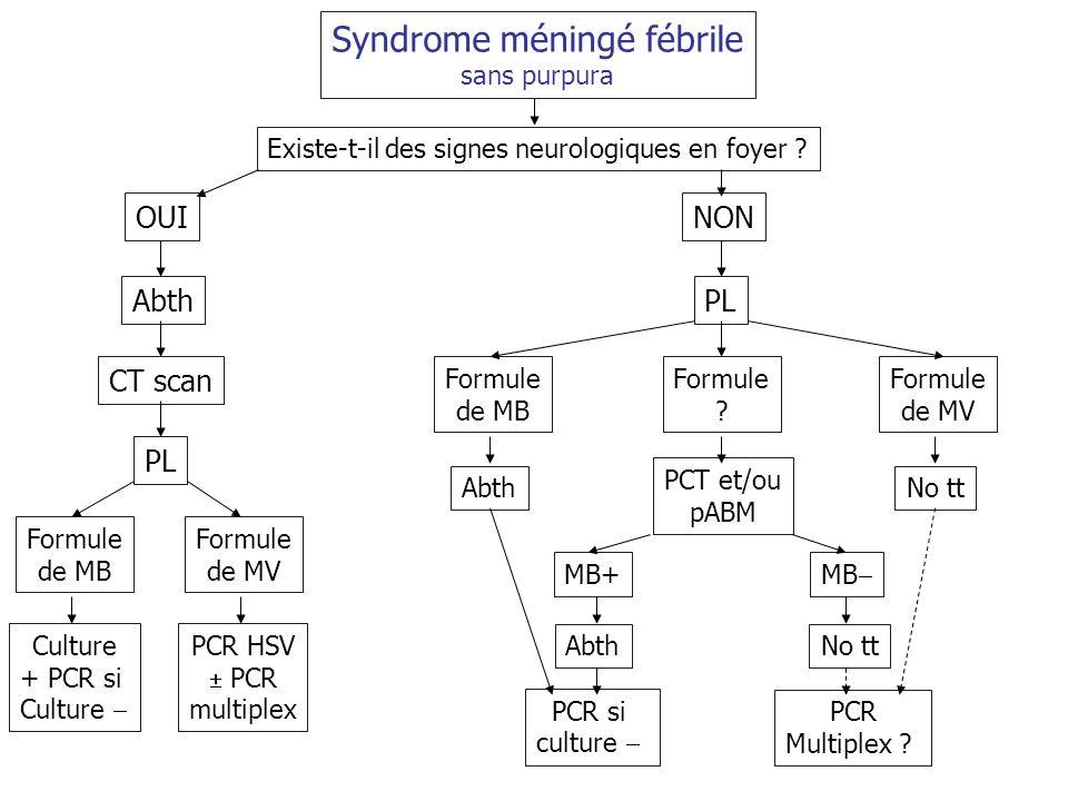 Syndrome méningé fébrile