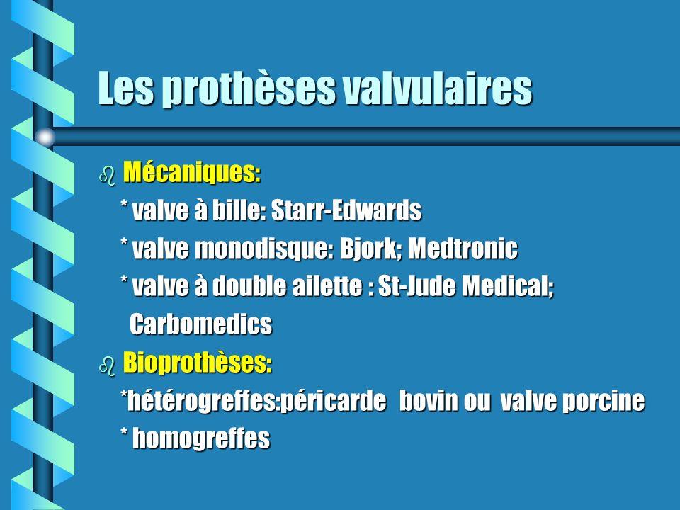 Les prothèses valvulaires