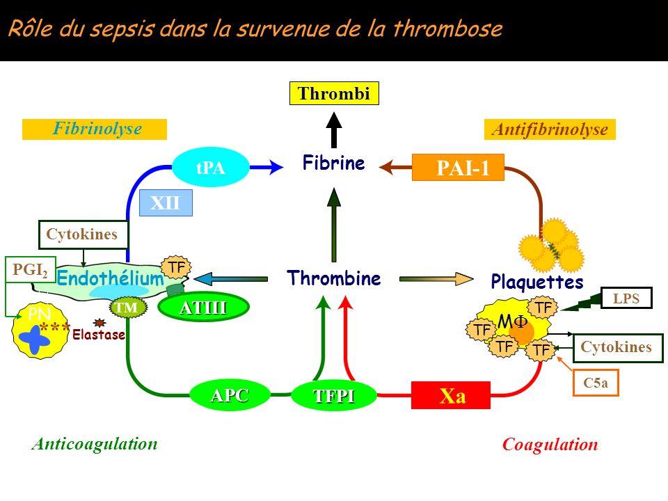 Rôle du sepsis dans la survenue de la thrombose