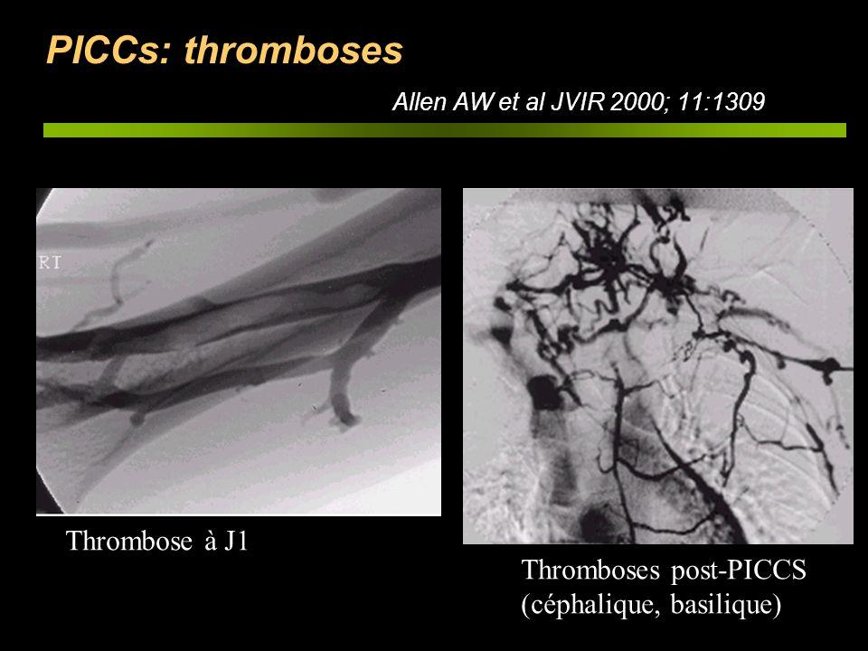 PICCs: thromboses Allen AW et al JVIR 2000; 11:1309