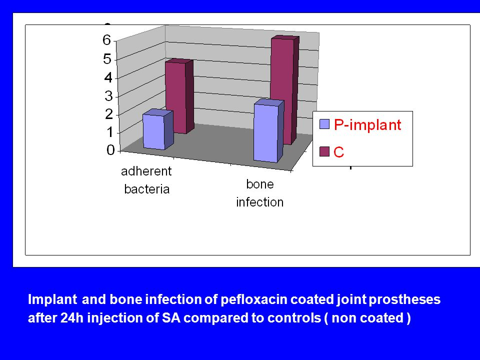 Implant and bone infection of pefloxacin coated joint prostheses