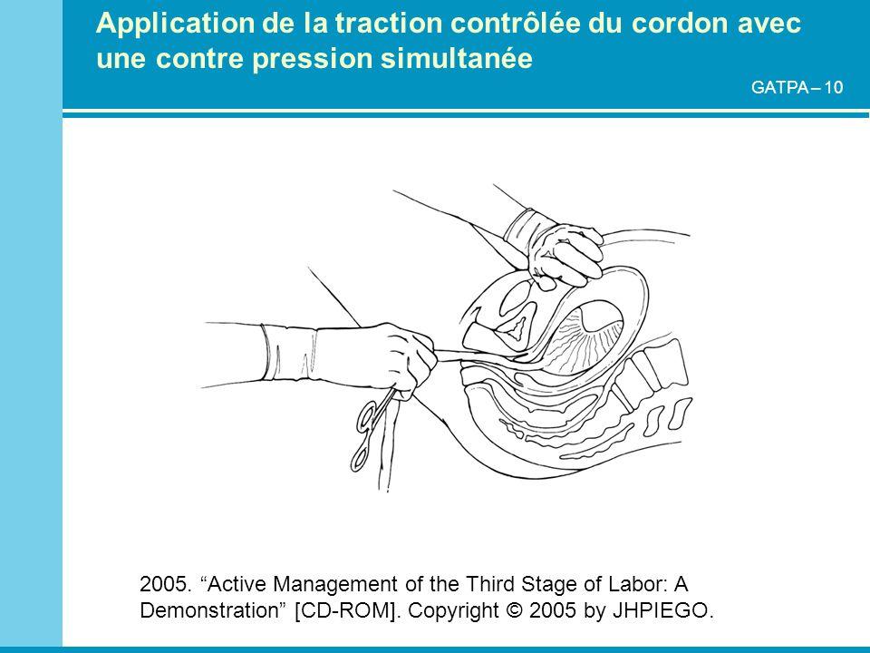 Application de la traction contrôlée du cordon avec une contre pression simultanée