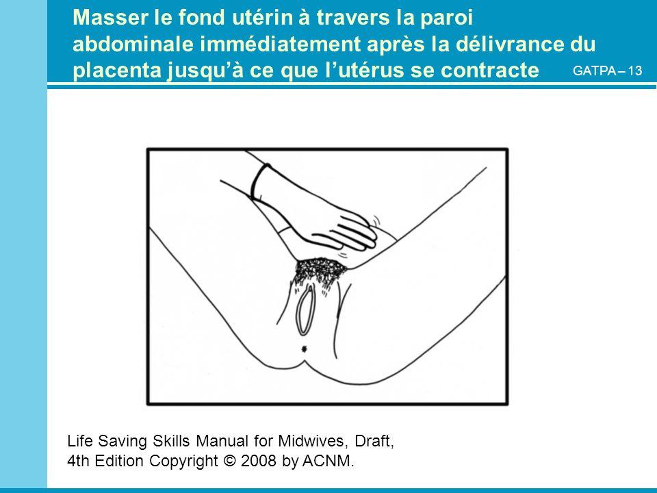 Masser le fond utérin à travers la paroi abdominale immédiatement après la délivrance du placenta jusqu'à ce que l'utérus se contracte