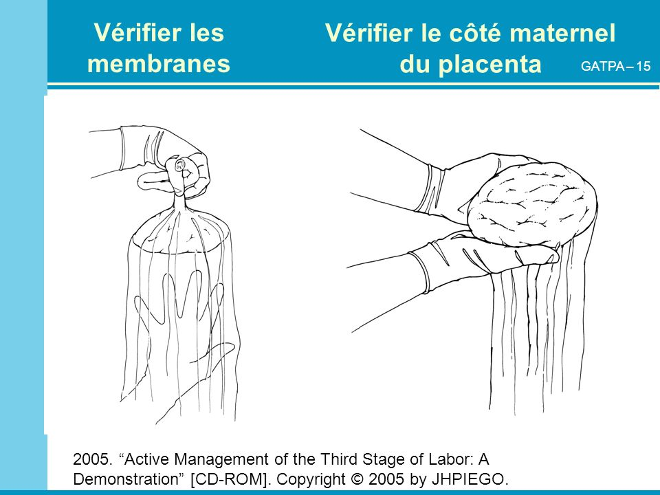 Vérifier les membranes Vérifier le côté maternel du placenta