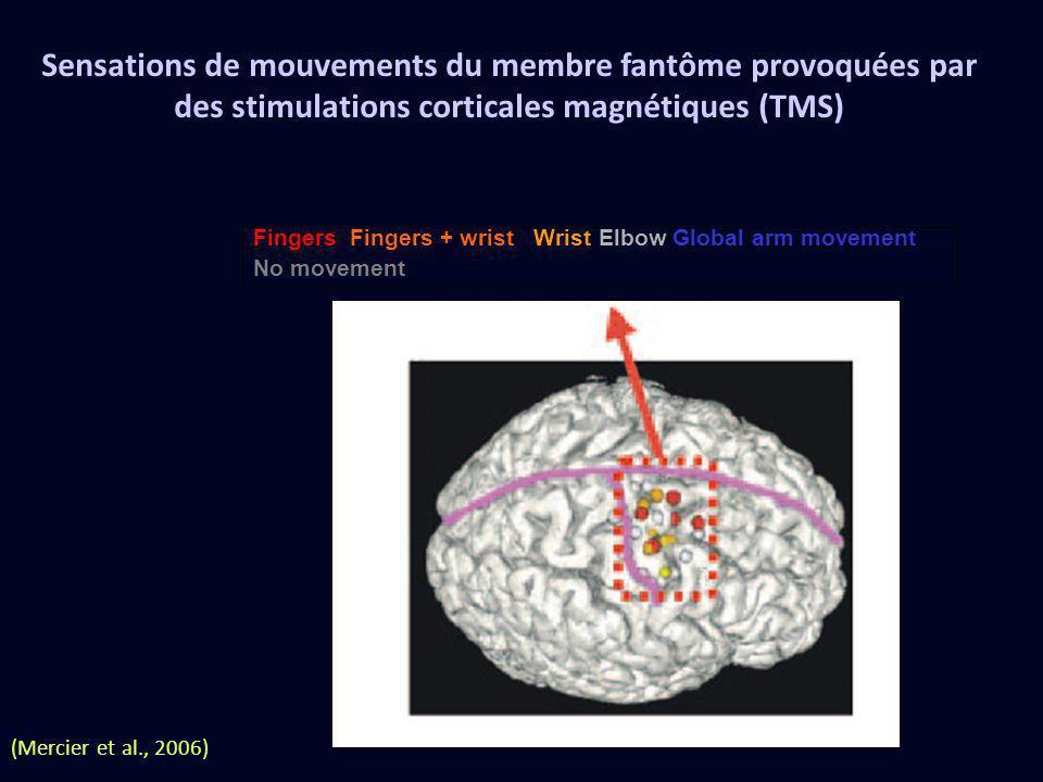 Sensations de mouvements du membre fantôme provoquées par des stimulations corticales magnétiques (TMS)