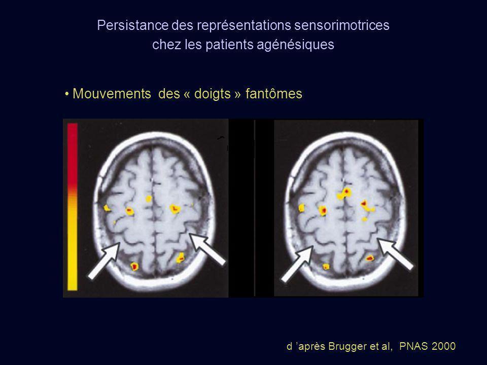 Persistance des représentations sensorimotrices