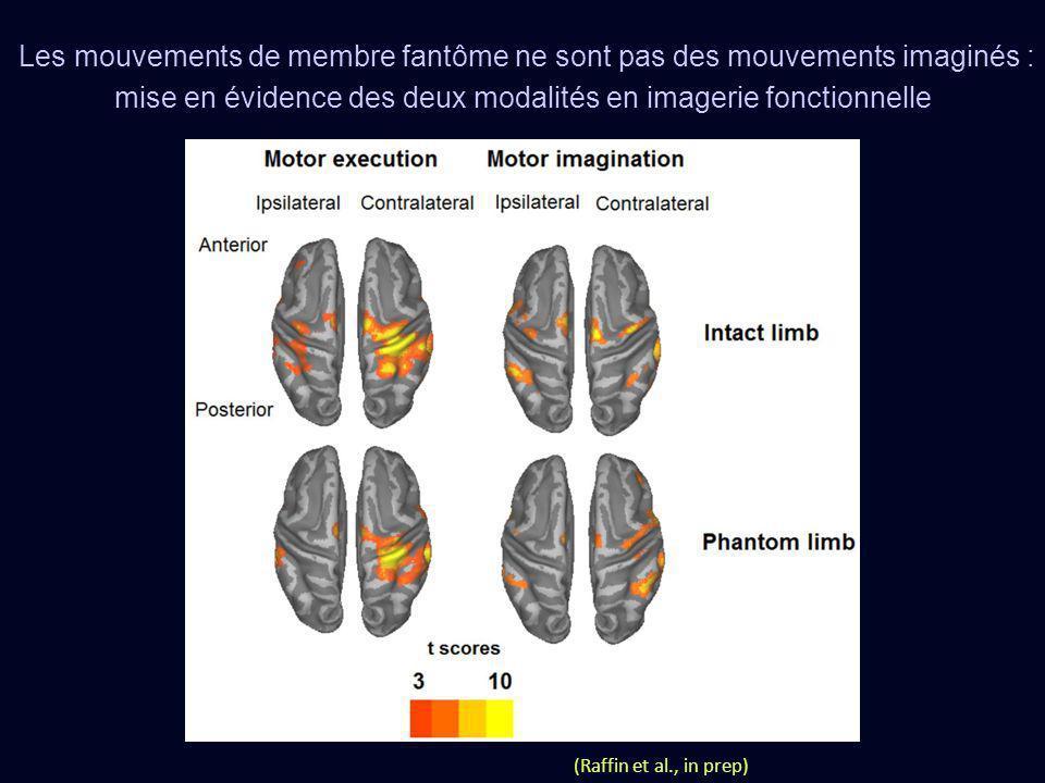 Les mouvements de membre fantôme ne sont pas des mouvements imaginés : mise en évidence des deux modalités en imagerie fonctionnelle