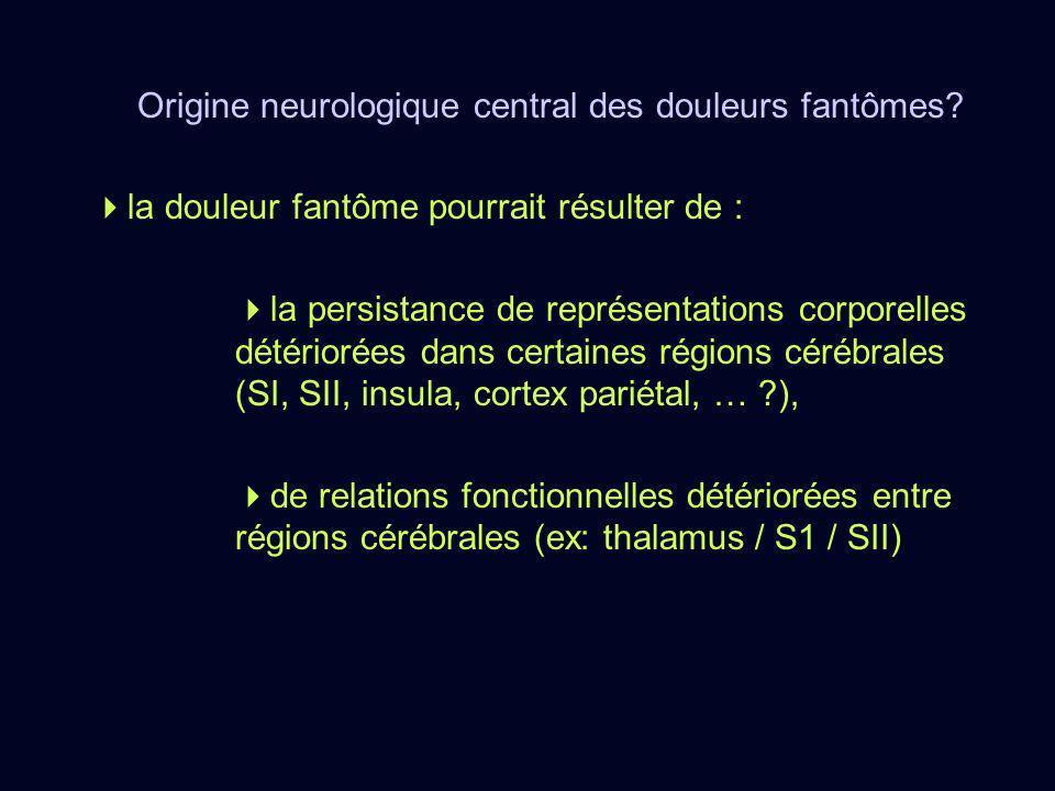 Origine neurologique central des douleurs fantômes