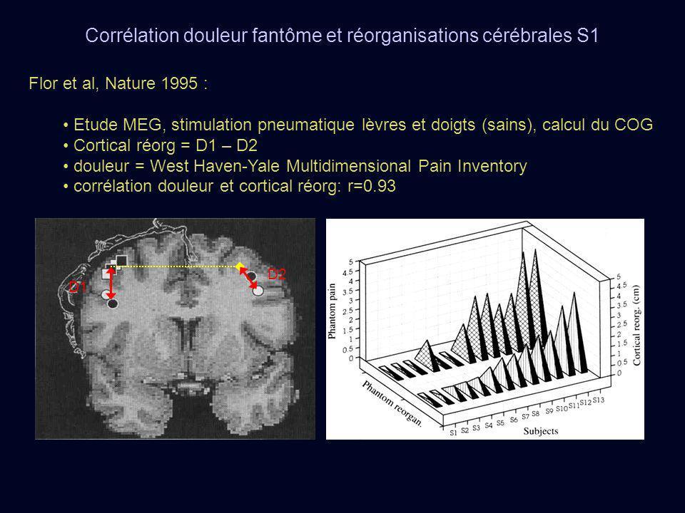 Corrélation douleur fantôme et réorganisations cérébrales S1