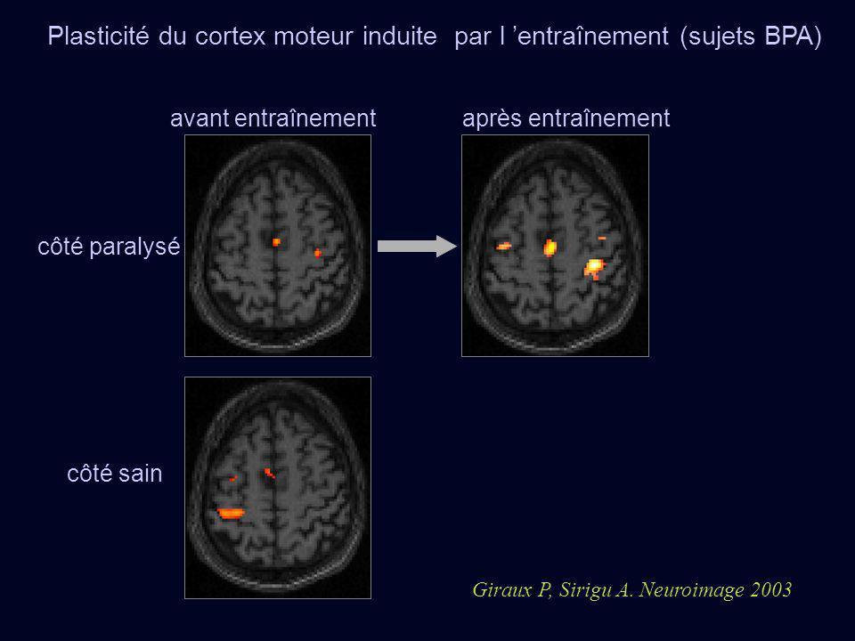 Plasticité du cortex moteur induite par l 'entraînement (sujets BPA)