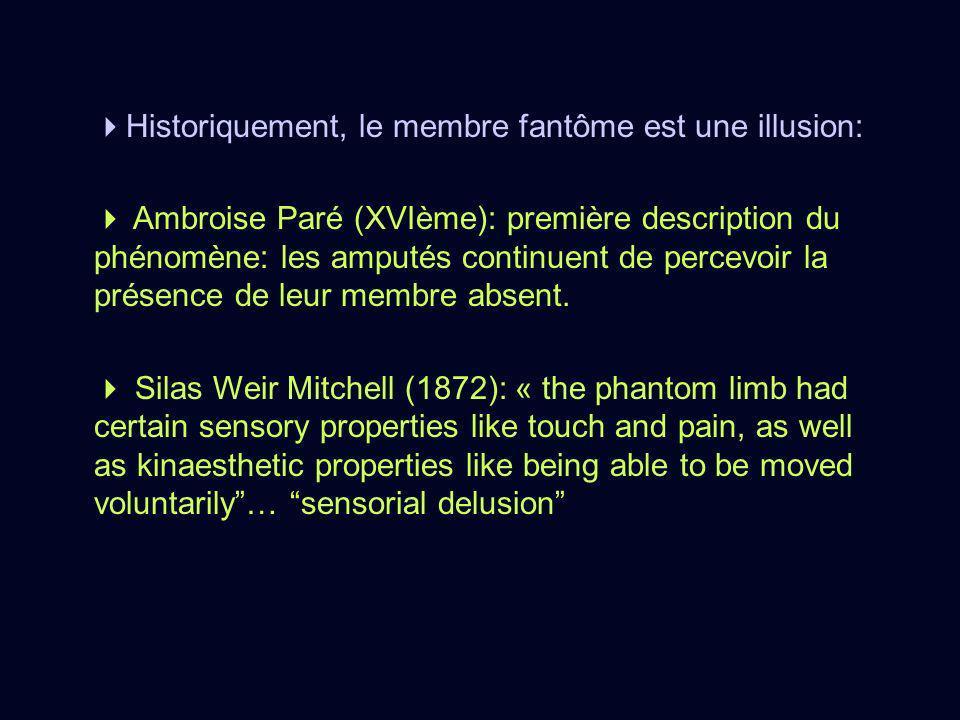 Historiquement, le membre fantôme est une illusion: