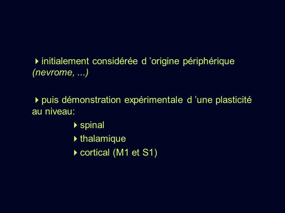 initialement considérée d 'origine périphérique (nevrome, ...)