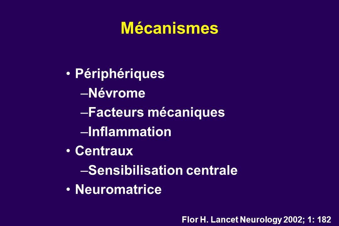 Mécanismes Périphériques Névrome Facteurs mécaniques Inflammation