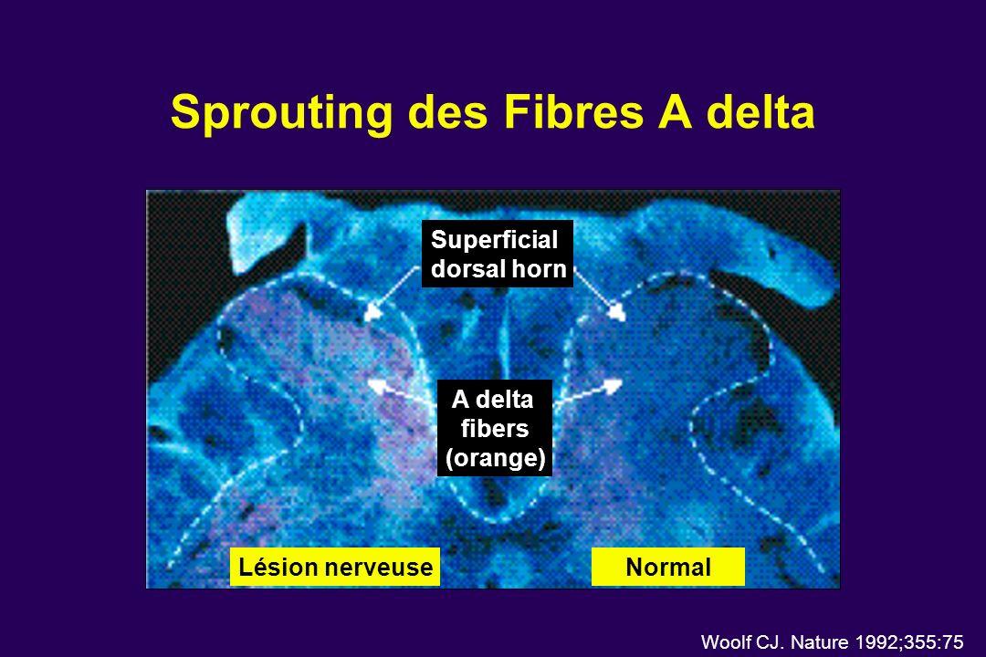 Sprouting des Fibres A delta