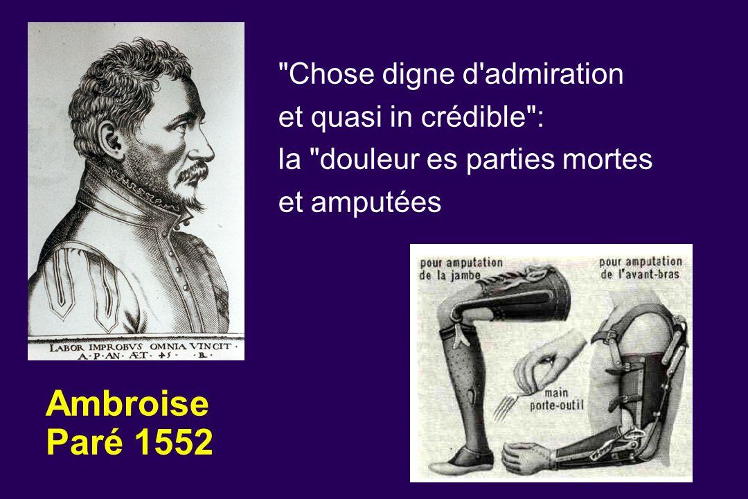 Ambroise Paré 1552 Chose digne d admiration et quasi in crédible :