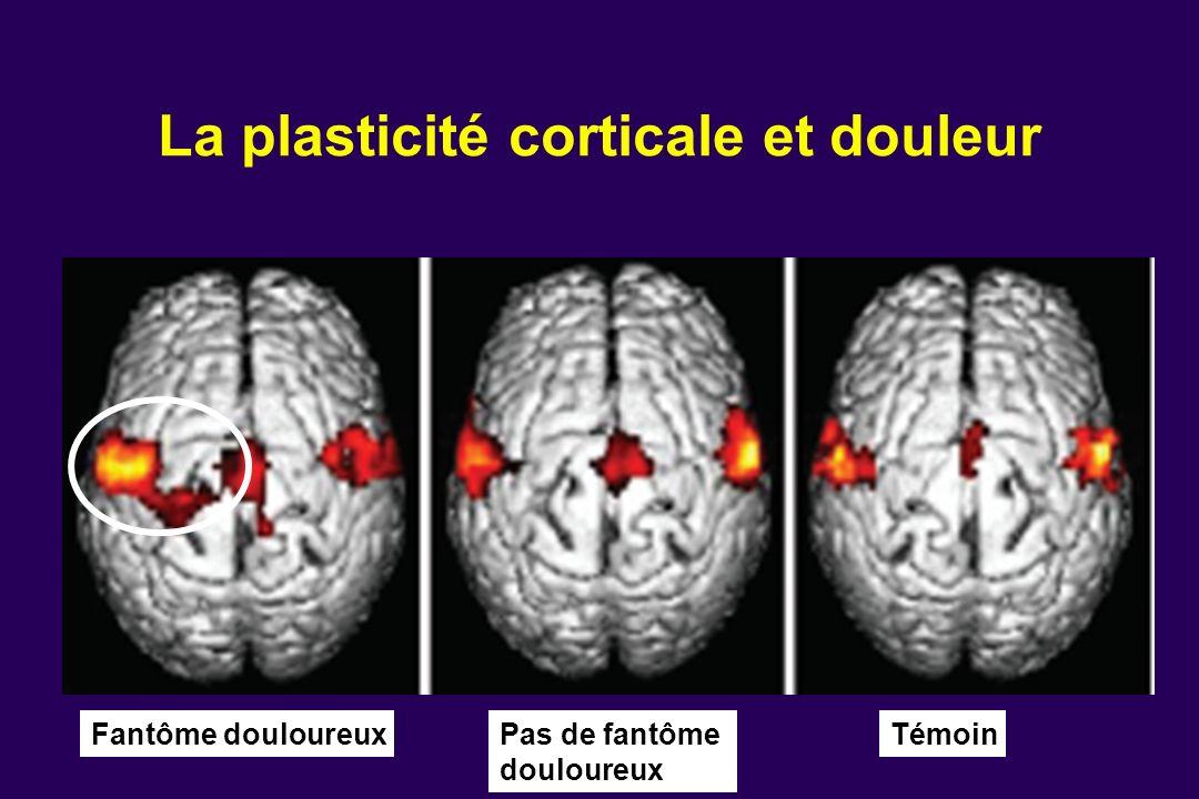 La plasticité corticale et douleur