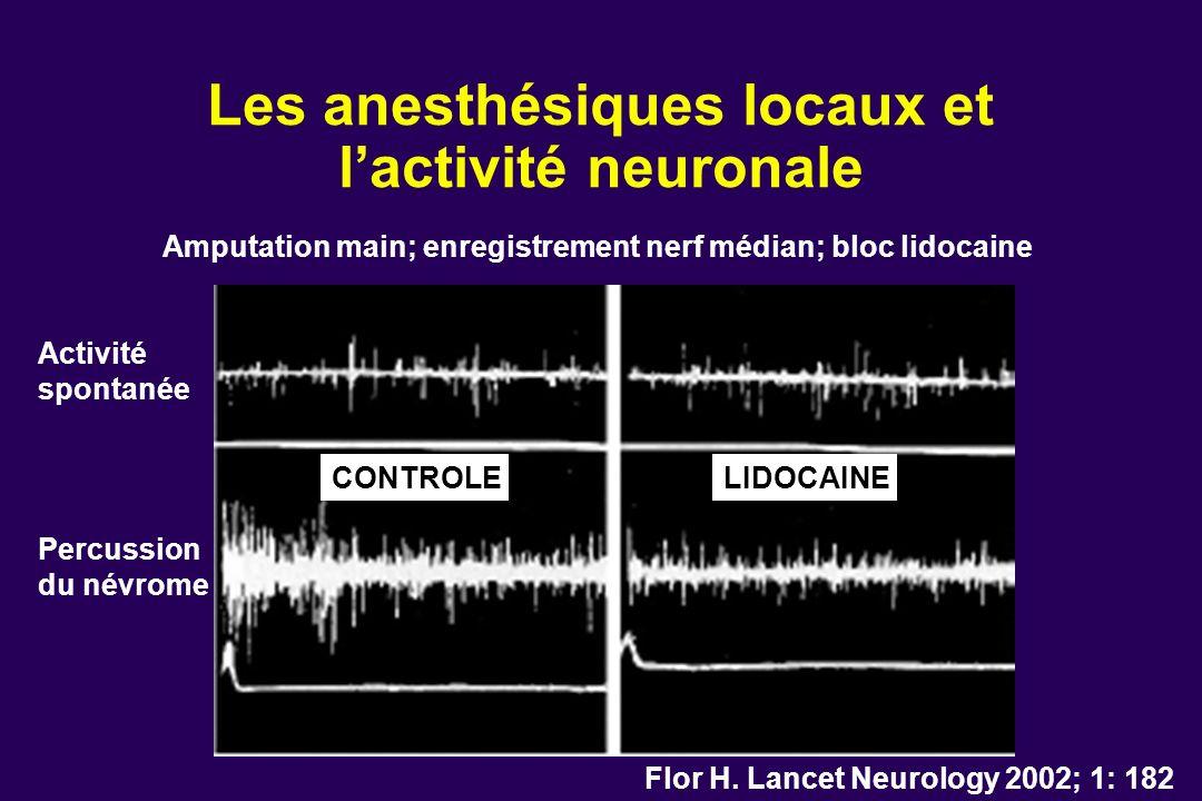 Les anesthésiques locaux et l'activité neuronale
