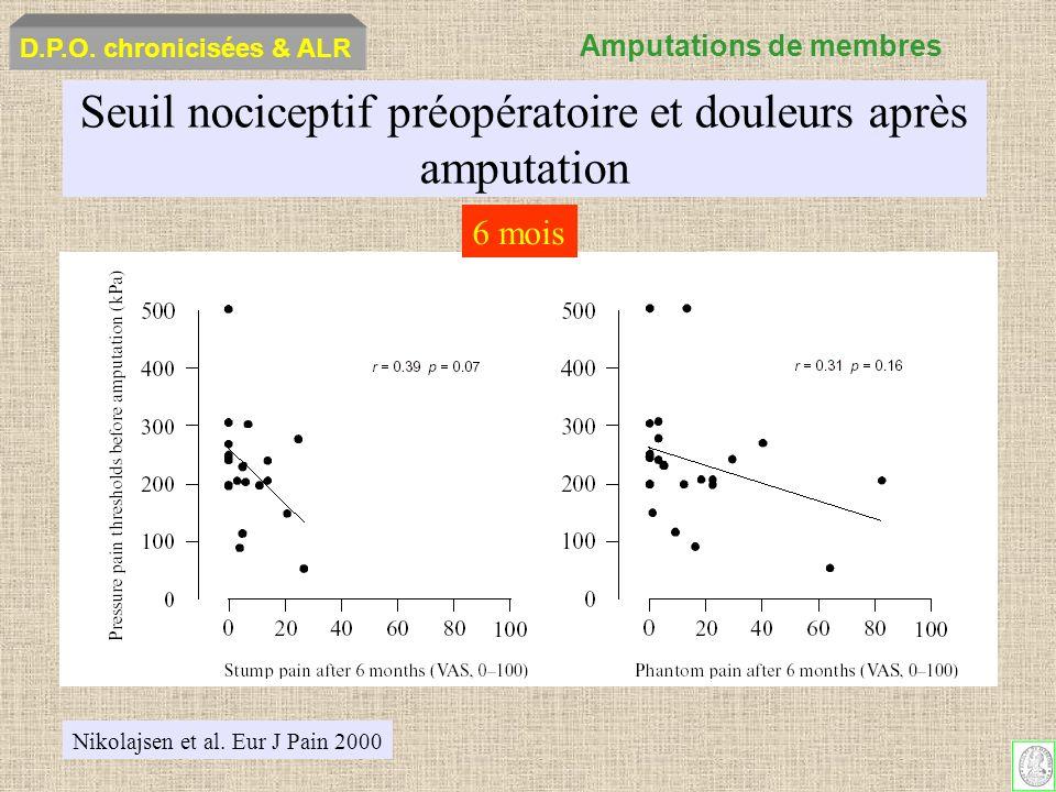 Seuil nociceptif préopératoire et douleurs après amputation