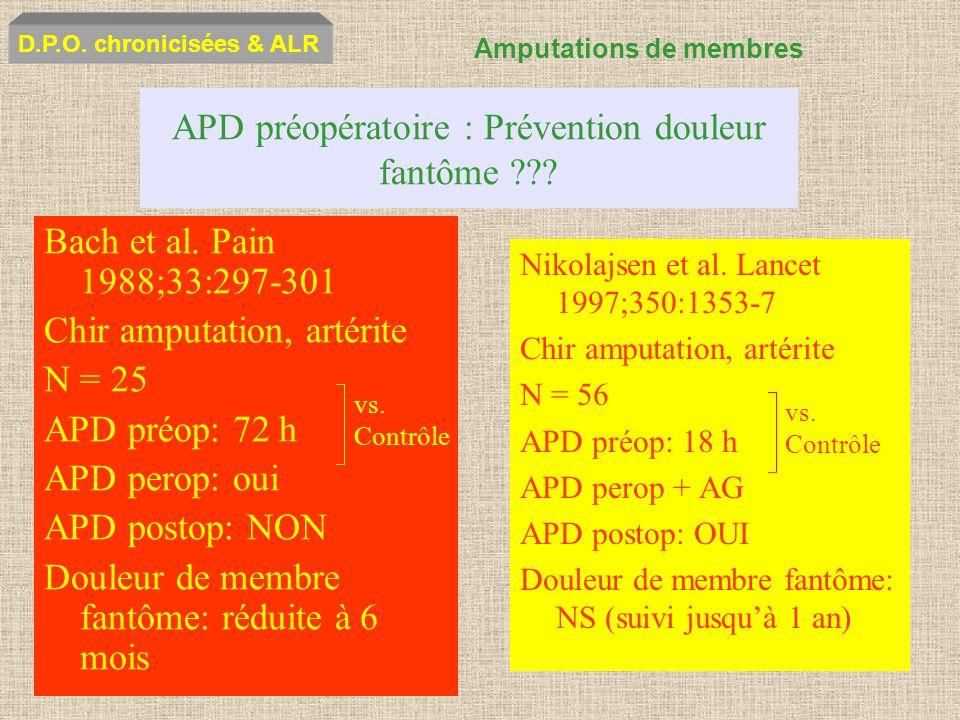 APD préopératoire : Prévention douleur fantôme