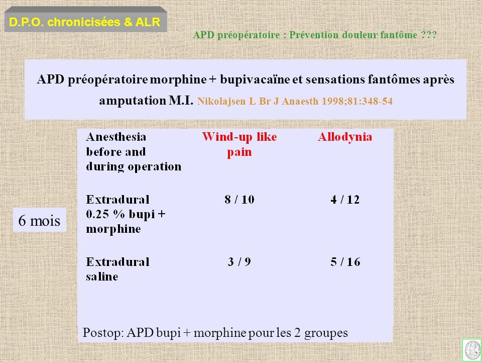 D.P.O. chronicisées & ALR APD préopératoire : Prévention douleur fantôme