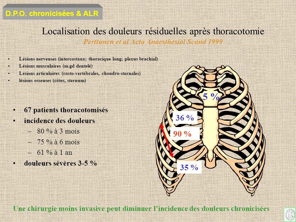 D.P.O. chronicisées & ALR Localisation des douleurs résiduelles après thoracotomie Perttunen et al Acta Anaesthesiol Scand 1999.