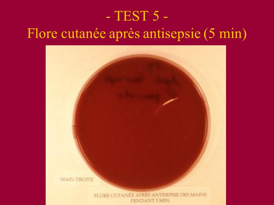 - TEST 5 - Flore cutanée après antisepsie (5 min)