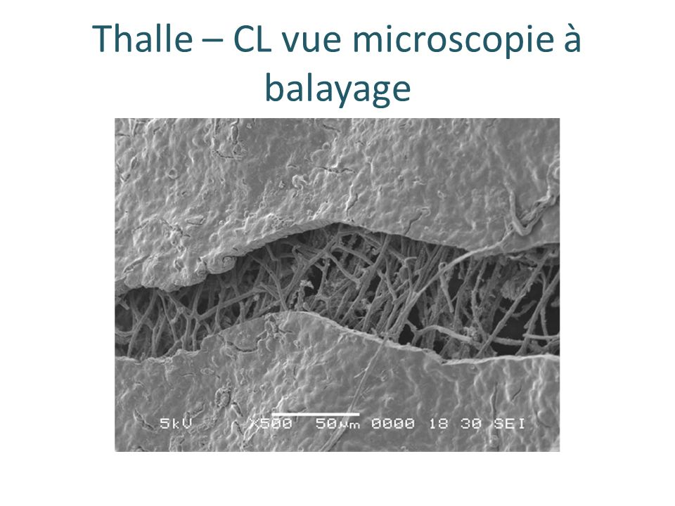 Thalle – CL vue microscopie à balayage