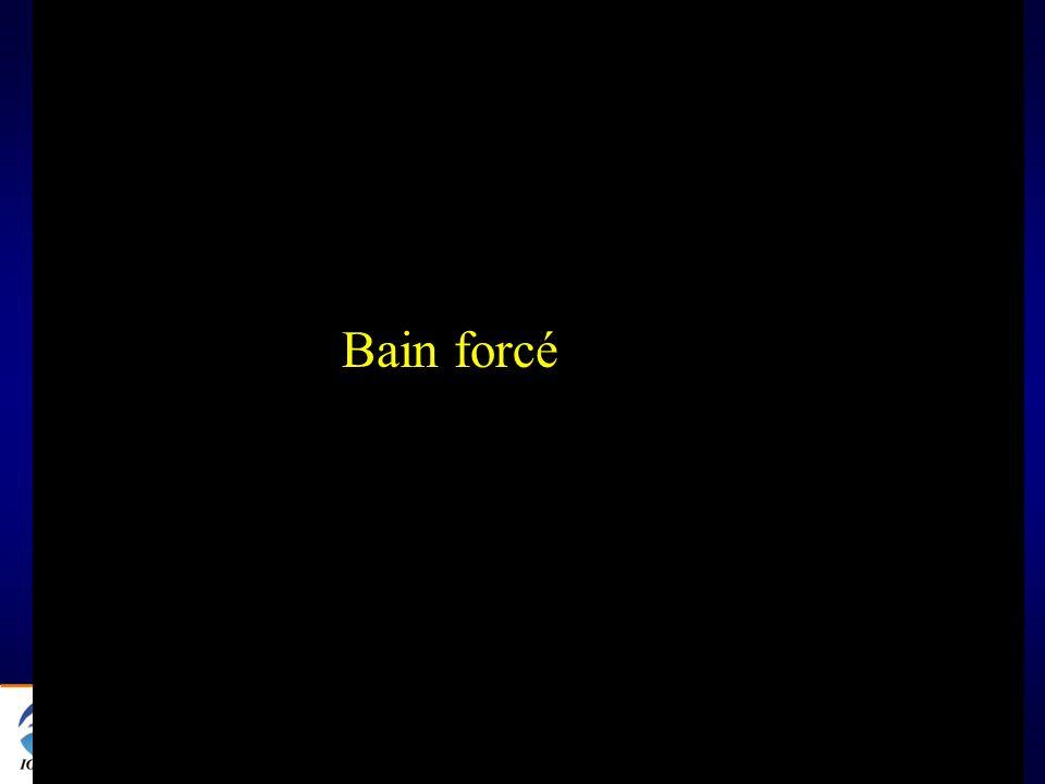 Bain forcé