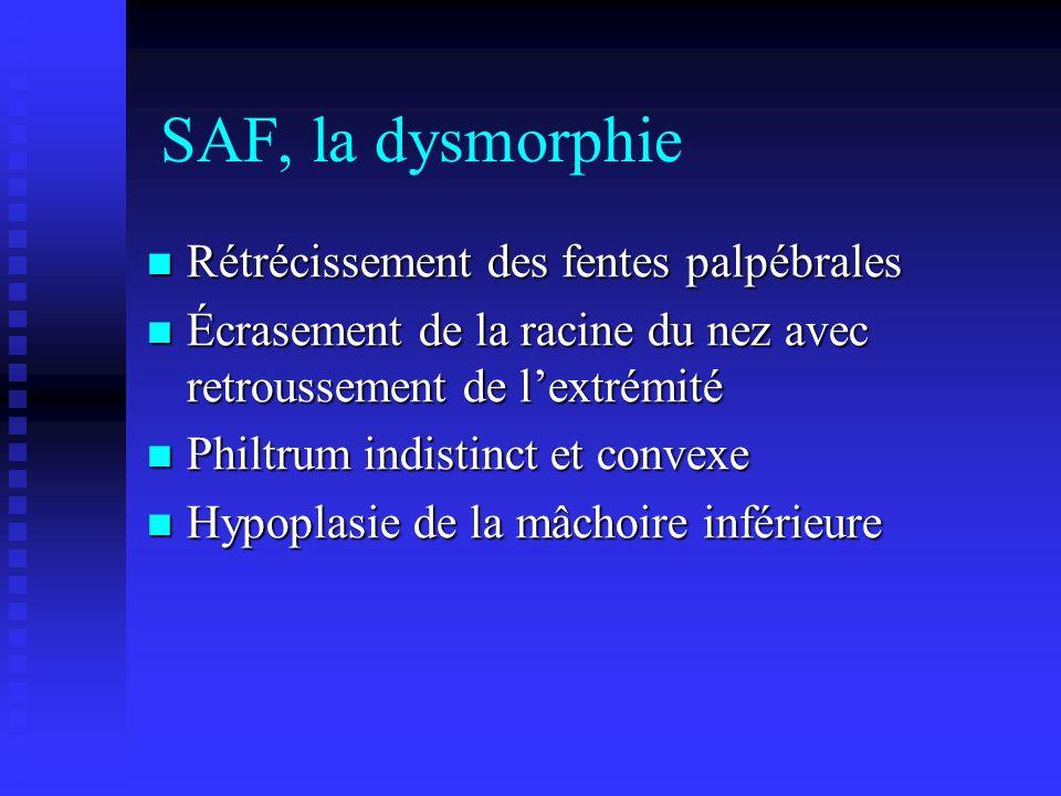 SAF, la dysmorphie Rétrécissement des fentes palpébrales