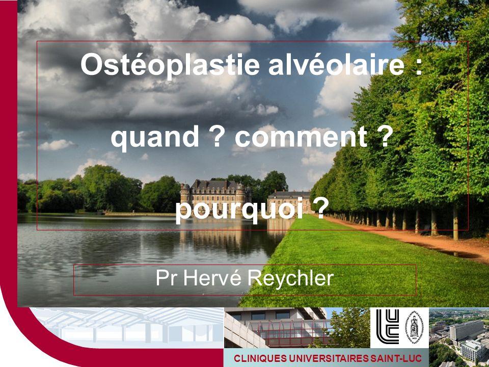 Ostéoplastie alvéolaire : quand comment pourquoi
