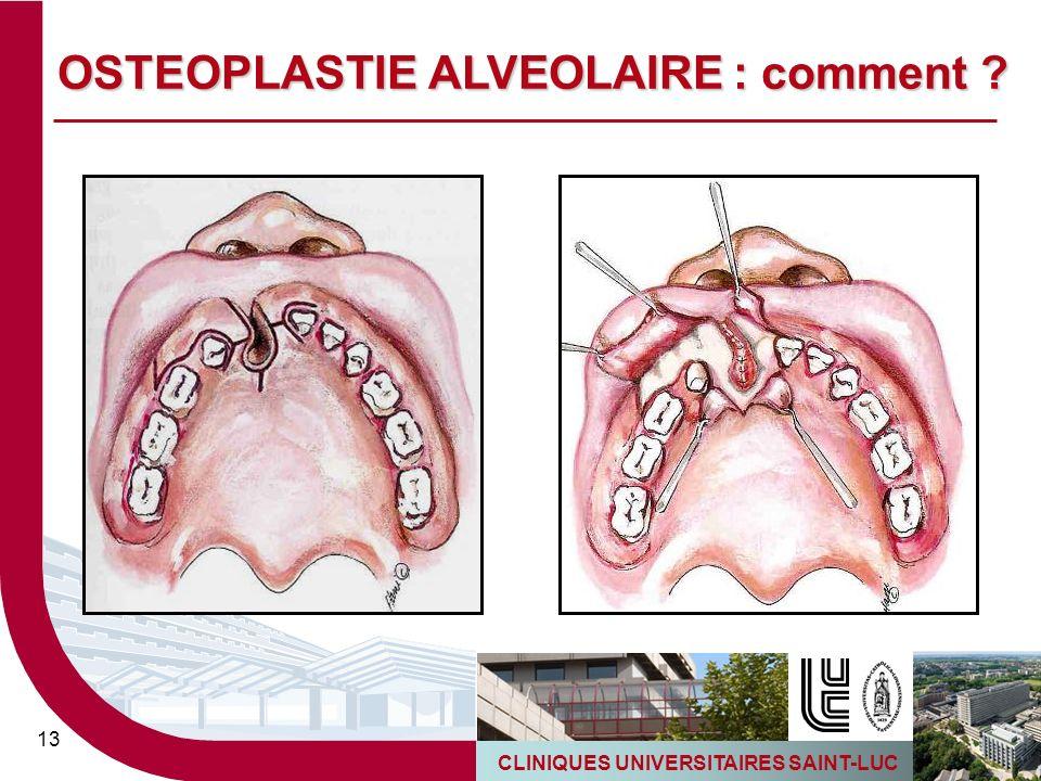OSTEOPLASTIE ALVEOLAIRE : comment