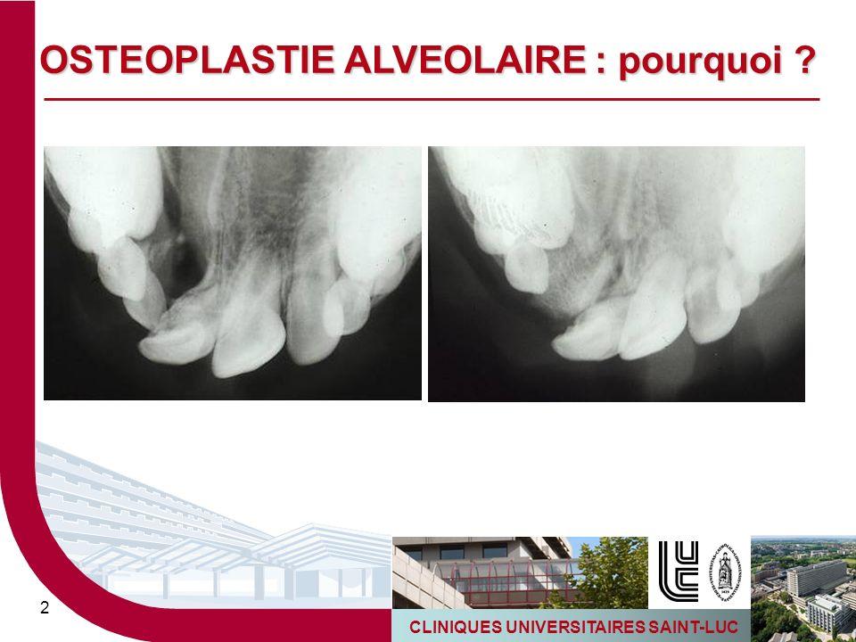OSTEOPLASTIE ALVEOLAIRE : pourquoi