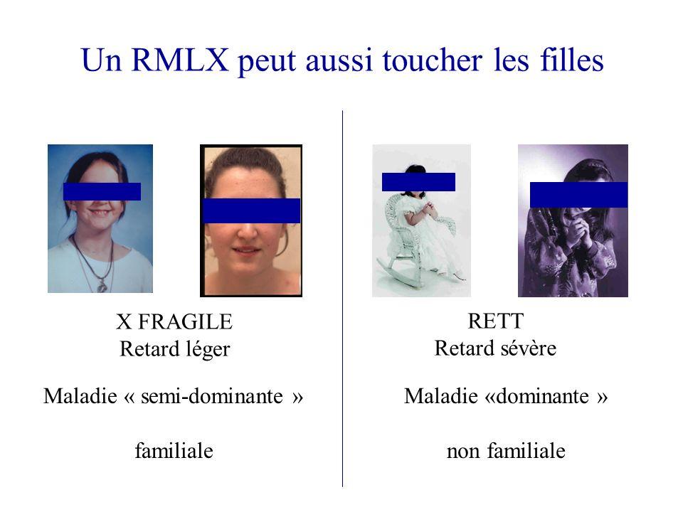 Un RMLX peut aussi toucher les filles