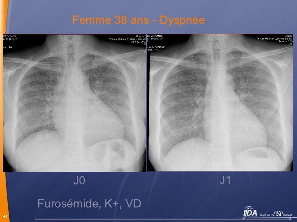 Femme 38 ans - Dyspnée J0 J1 Furosémide, K+, VD