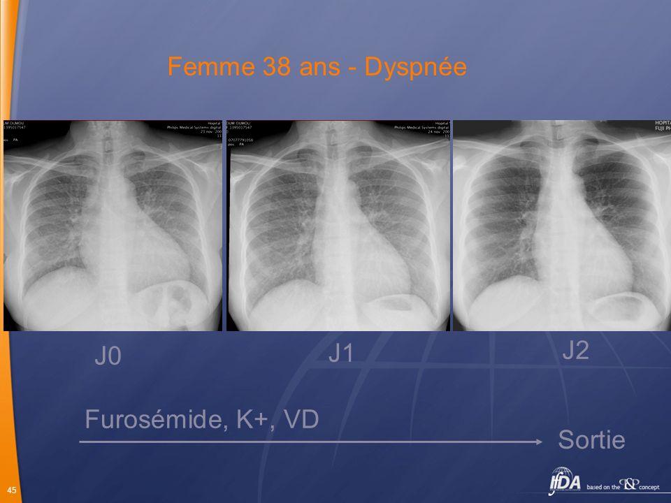 Femme 38 ans - Dyspnée J0 J1 J2 Furosémide, K+, VD Sortie