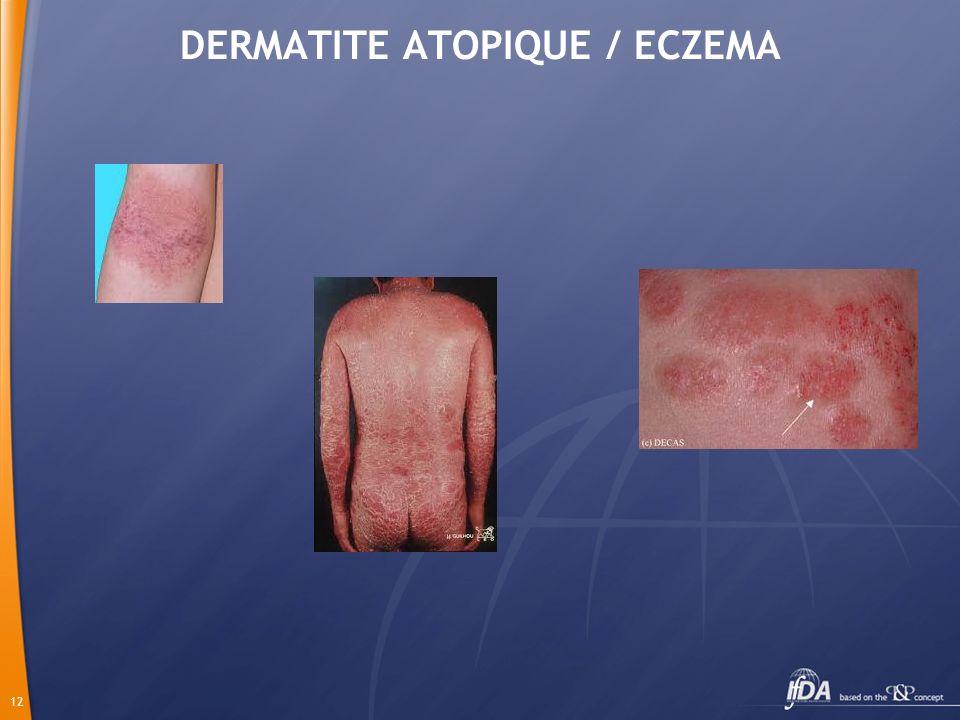 DERMATITE ATOPIQUE / ECZEMA