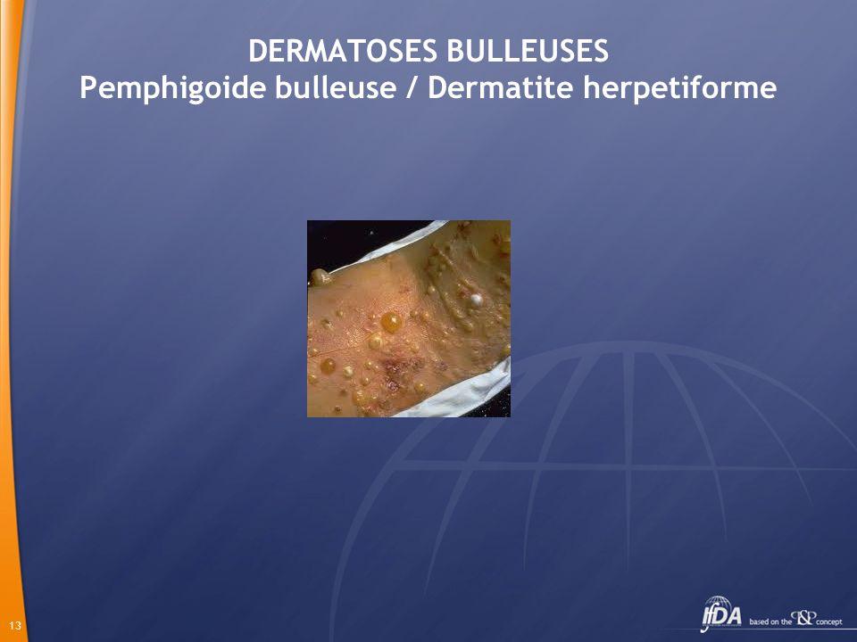 DERMATOSES BULLEUSES Pemphigoide bulleuse / Dermatite herpetiforme