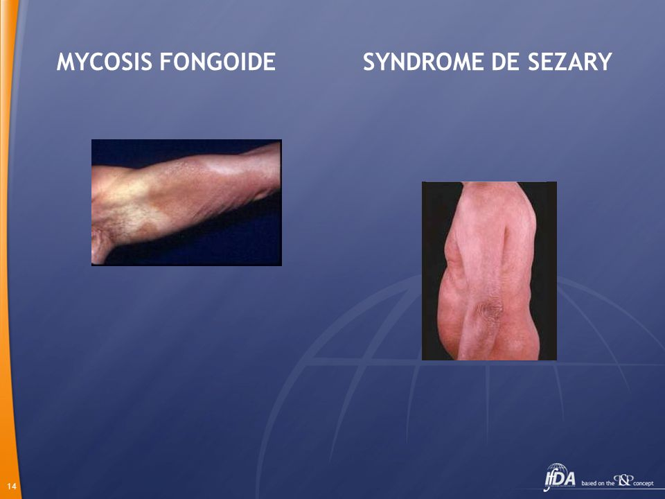 MYCOSIS FONGOIDE SYNDROME DE SEZARY