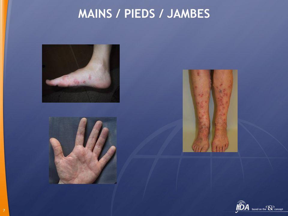 MAINS / PIEDS / JAMBES
