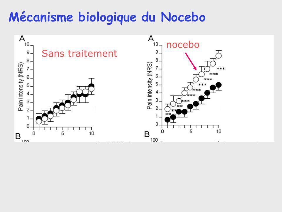Mécanisme biologique du Nocebo