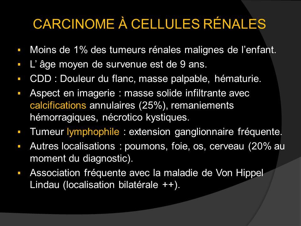 CARCINOME À CELLULES RÉNALES
