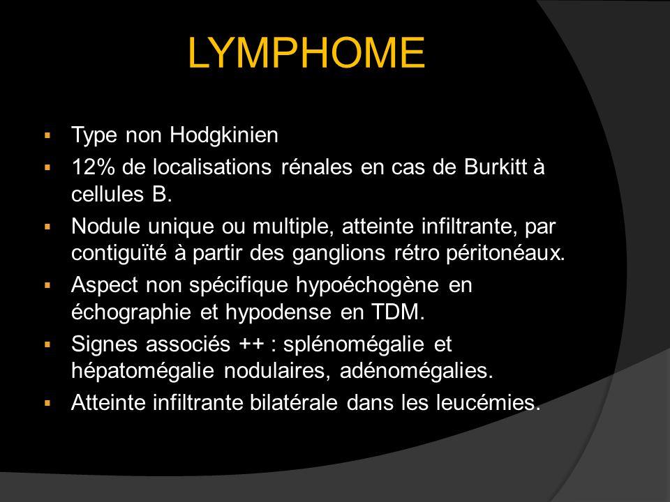 LYMPHOME Type non Hodgkinien